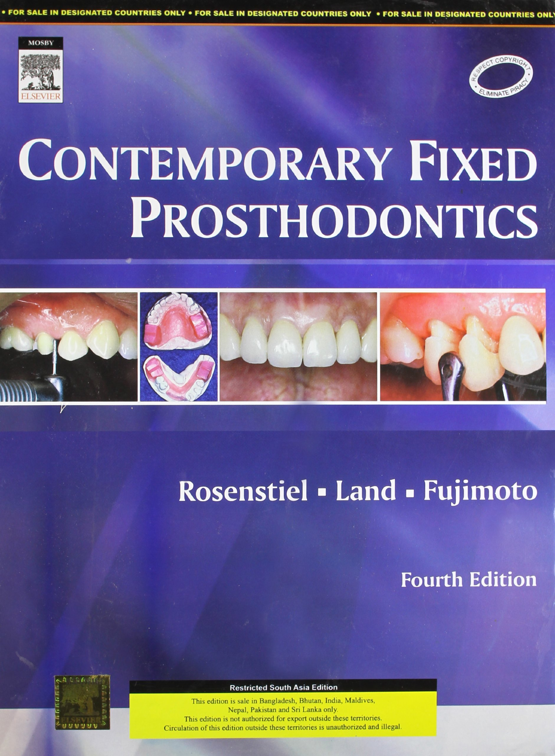 Rosenstiel contemporary fixed prosthodontics 4th edition epub download this fandeluxe Choice Image